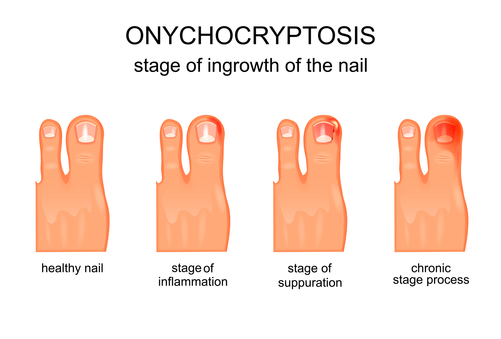 stage of ingrowth of the nail