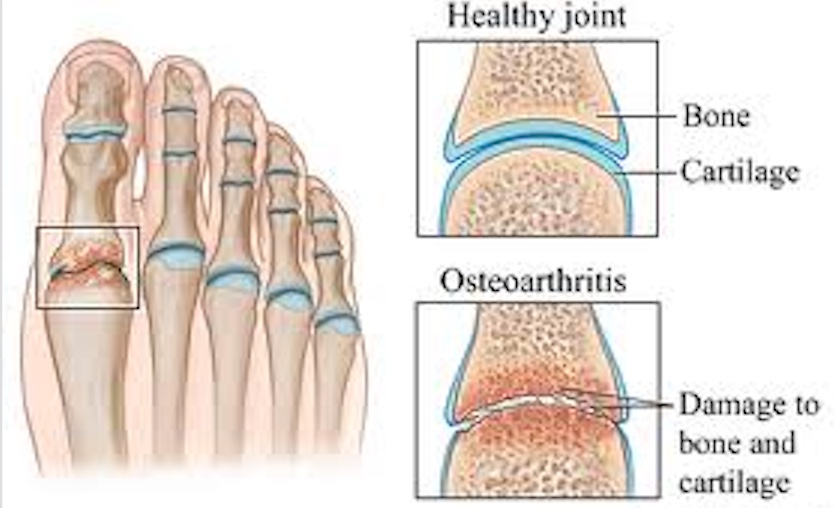 Healthy Joint vs Damage to bone and cartilage