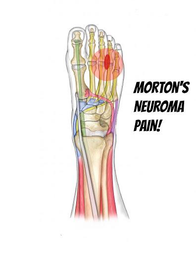 Morton's Neuroma Pain
